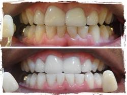 Σφίξιμο των δοντιών